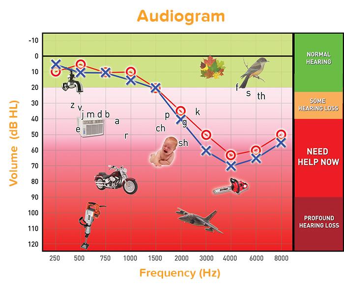 Audiogram.xlsx