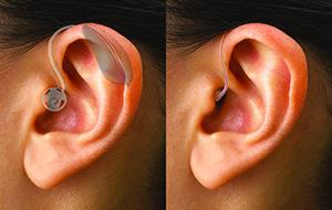 hearing aid diagram of ear